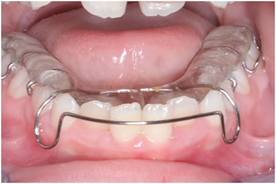preventive and interceptive orthodontics dr e rengin